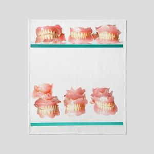 Dental moulds Throw Blanket