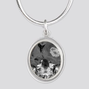 Brain cancer, MRI scan Silver Oval Necklace