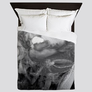 Brain cancer, MRI scan Queen Duvet