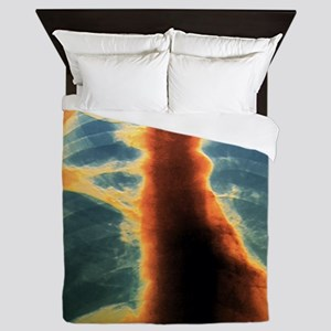Collapse (atelectasis) of lung, X-ray Queen Duvet
