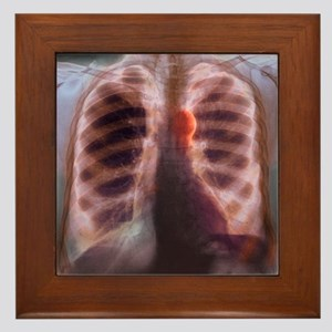 Aortic aneurysm, X-ray Framed Tile