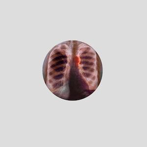 Aortic aneurysm, X-ray Mini Button