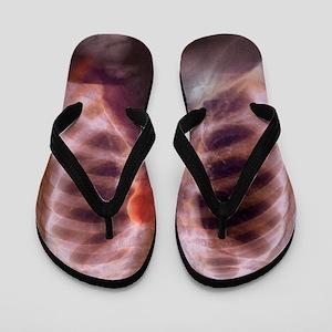 Aortic aneurysm, X-ray Flip Flops