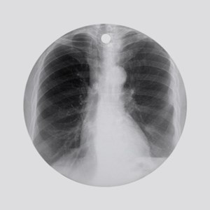 Aortic aneurysm, X-ray Round Ornament