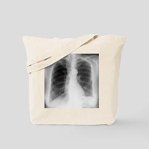 Aortic aneurysm, X-ray Tote Bag