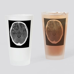 Brain haemorrhage, MRI scan Drinking Glass