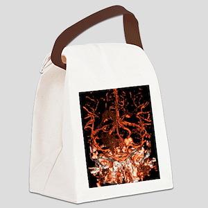 Berry aneurysm, angiogram Canvas Lunch Bag