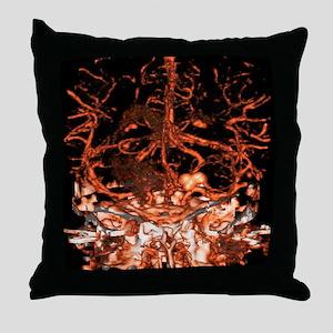 Berry aneurysm, angiogram Throw Pillow