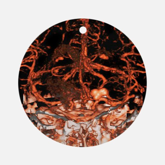 Berry aneurysm, angiogram Round Ornament