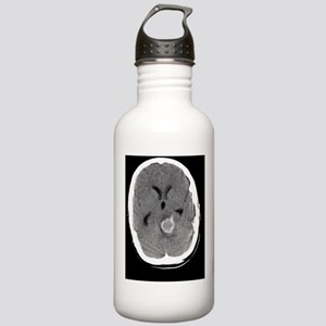 Berry aneurysm, MRI sc Stainless Water Bottle 1.0L