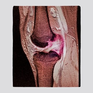 Anterior cruciate ligament tear, CT  Throw Blanket
