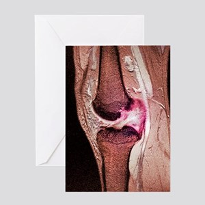 Anterior cruciate ligament tear, CT  Greeting Card