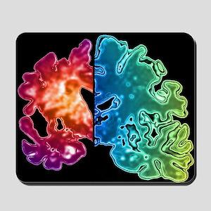 Alzheimer's brain Mousepad
