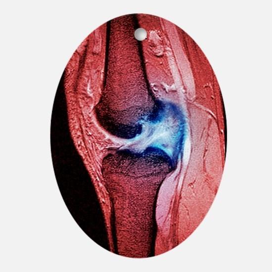 Anterior cruciate ligament tear, CT  Oval Ornament