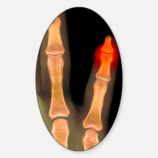 Amputated fingertip, X-ray Sticker (Oval)
