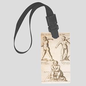 1662 Schott birth defects, terat Large Luggage Tag