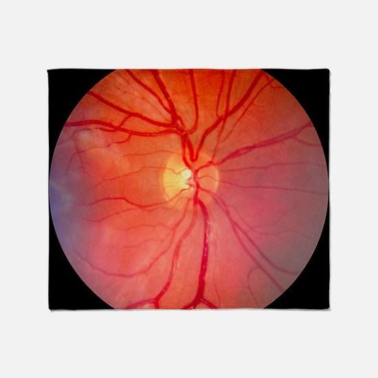 Normal retina of eye Throw Blanket