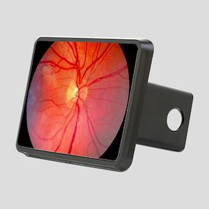 Normal retina of eye Rectangular Hitch Cover