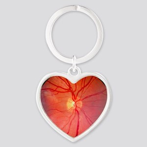 Normal retina of eye Heart Keychain