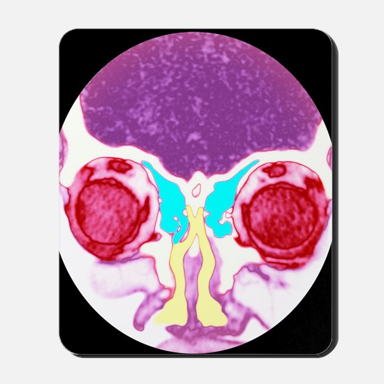 Nose and sinuses, CT scan Mousepad