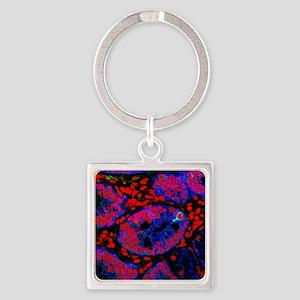 Small intestine Square Keychain