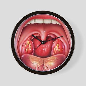 Tonsillitis Wall Clock