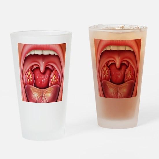 Tonsillitis Drinking Glass