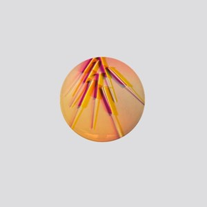 View of several acupuncture needles Mini Button