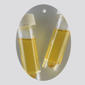 Urine samples Oval Ornament
