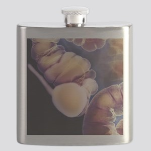 X-ray of appendix Flask