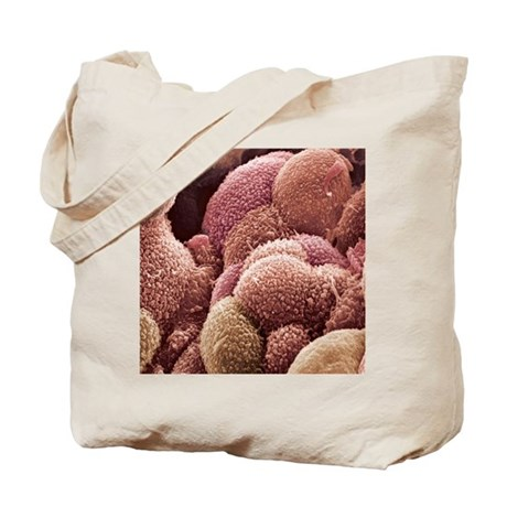 Ovarian cancer cells, SEM Tote Bag