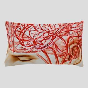 Artwork of cerebral embolism, cause of Pillow Case