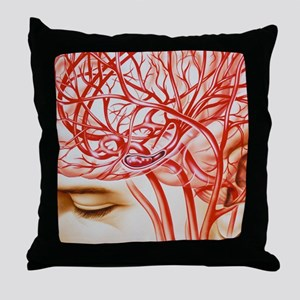 Artwork of cerebral embolism, cause o Throw Pillow