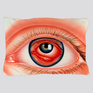 Abstract illustration of eye with conj Pillow Case