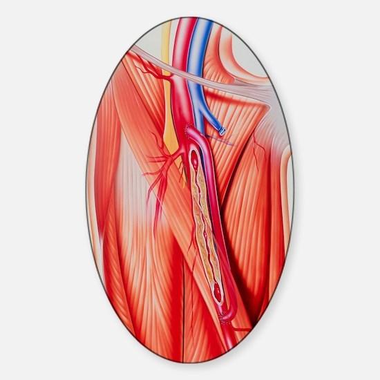 Arterial bypass Sticker (Oval)