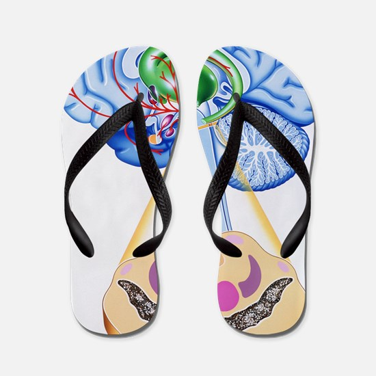 Artwork of brain areas in Parkinson's d Flip Flops