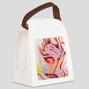 Endometriosis Canvas Lunch Bag