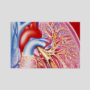 Bronchitis Rectangle Magnet