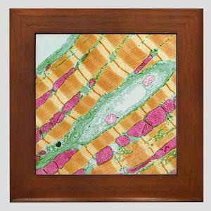 Cardiac muscle, TEM Framed Tile