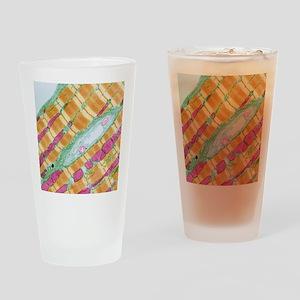 Cardiac muscle, TEM Drinking Glass