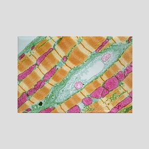 Cardiac muscle, TEM Rectangle Magnet