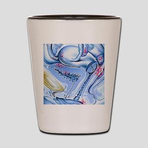 Endometriosis Shot Glass