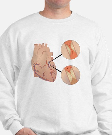 Heart disease Sweatshirt
