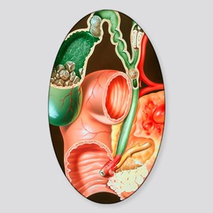Illustration of invading carcinoma  Sticker (Oval)