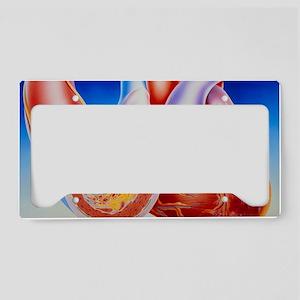 Illustration of cardiac failu License Plate Holder