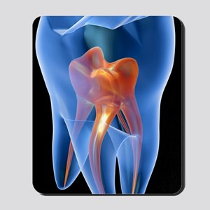 Molar tooth Mousepad
