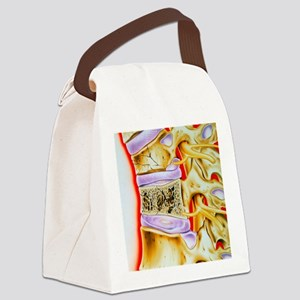 Osteoporitic spine Canvas Lunch Bag