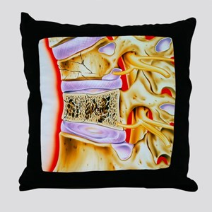 Osteoporitic spine Throw Pillow