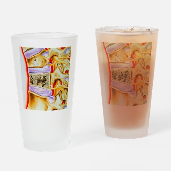 Osteoporitic spine Drinking Glass