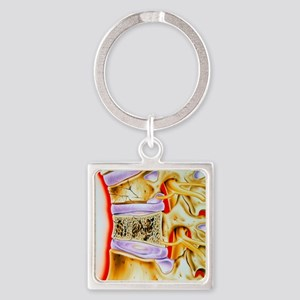 Osteoporitic spine Square Keychain